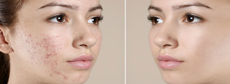 vorher nachher Bild Frauengesicht mit Akne