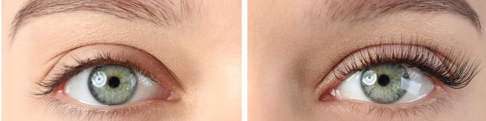 Ein Augenpaar mit unterschiedlichen Wimpernkranz